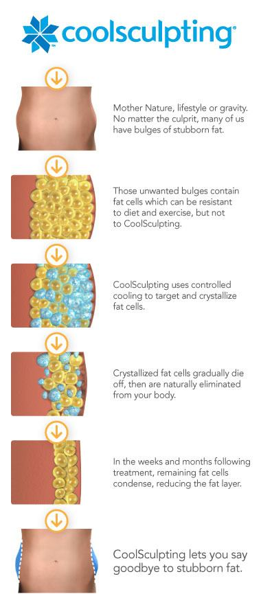 CoolSculpting_ZELTIQ_Illustration_Chart-380x881