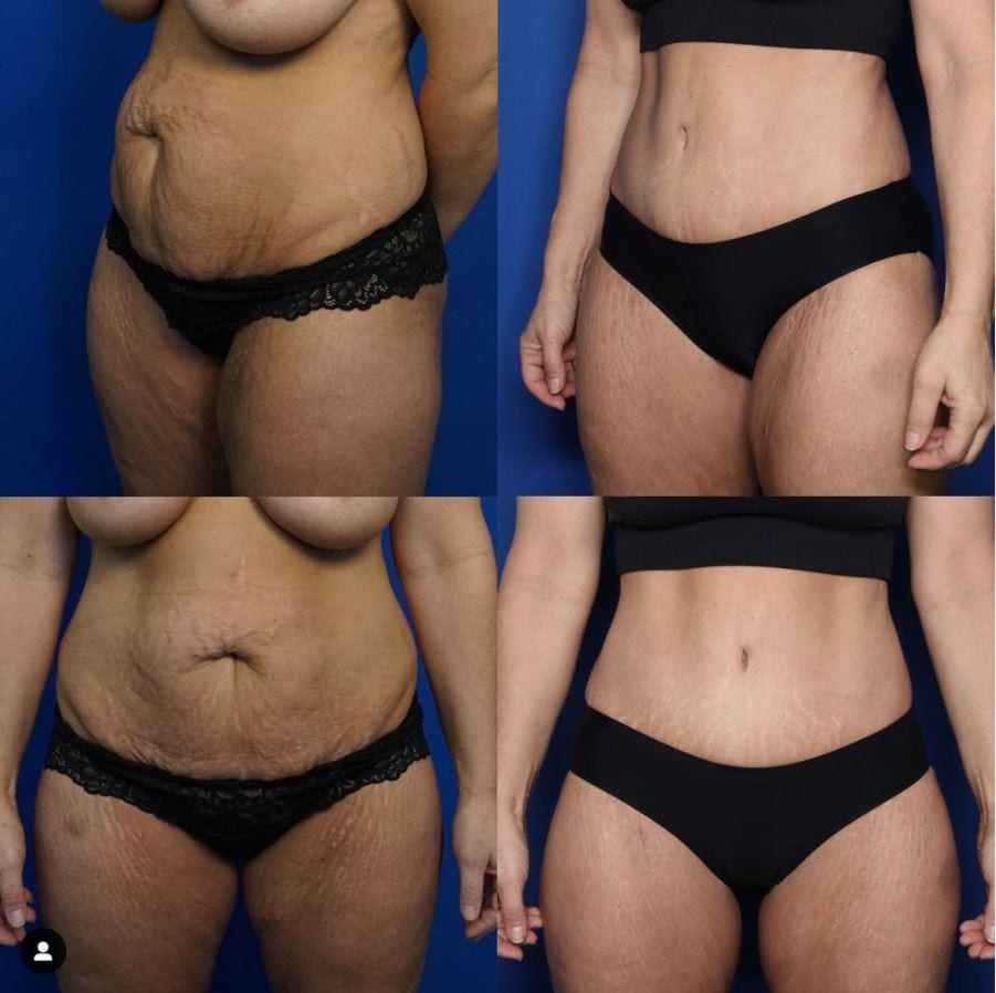 Body Contouring before and afters