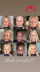 Kelly shares her Sciton laser treatment recovery process